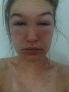 Slem allergi