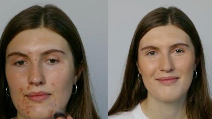 Dæk uren hud i ansigtet med makeup