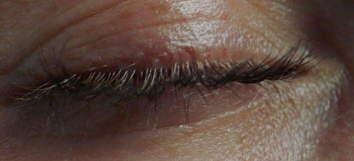 Sensitiv hud og hudallergi